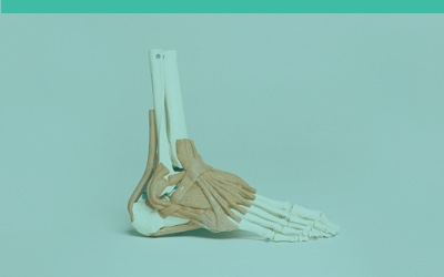 Cause and treatment of plantar fasciitis