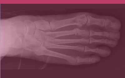 How do you detect a stress fracture?
